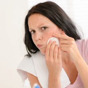 10 Great Tips to Help You Prevent Spots