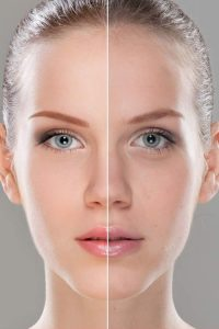 Remedies for Face Lifts in the Home Environment