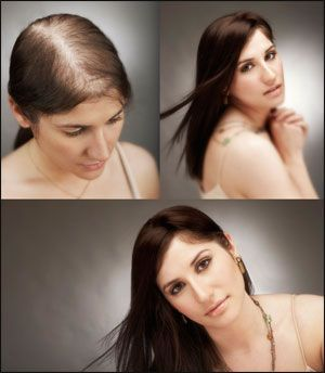 Hair fall and remedies - Hair Care, Beauty Tips, Fashion Central