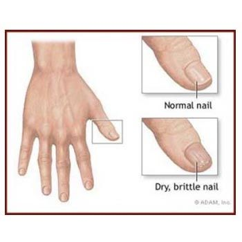 Tips To Have Strong And Healthy Nails