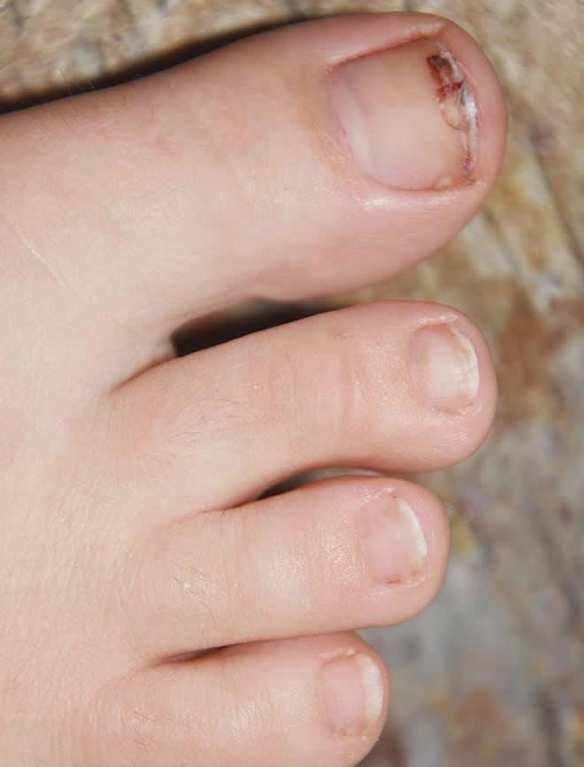 fungus nail photos