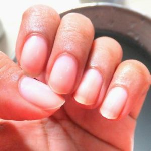 9 Effective Nail Tips To Remove Yellow Stains