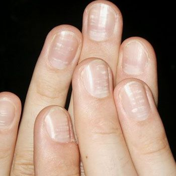 White Spotted Nails Care Tips