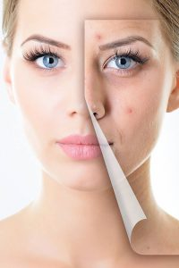 5 Non Invasive Solutions for Common Skin Complaints