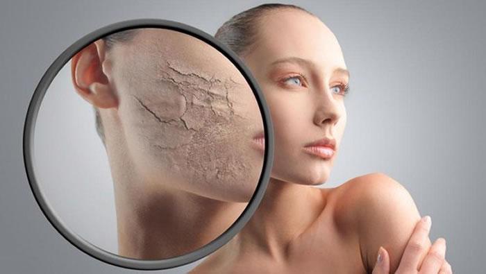 Get Rid of Skin Irritation