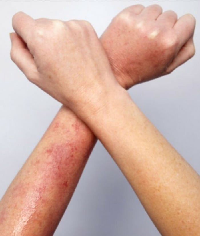 Heat rash skin