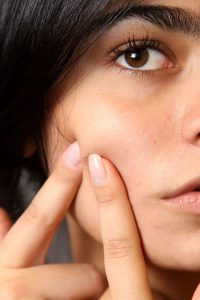 Treat Skin Problems During Summer