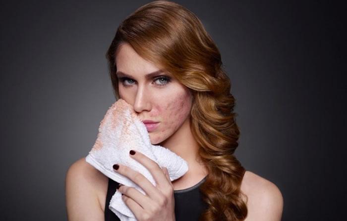 Makeup Worsens Acne
