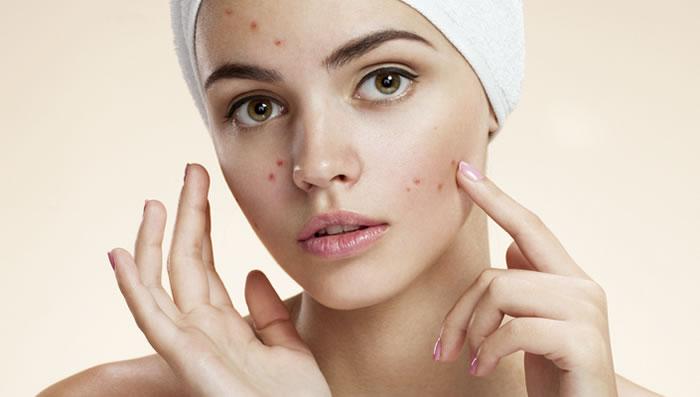 Moisturizers Cause Acne