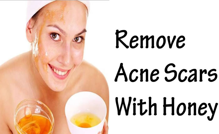 Honey for an effective acne treatment