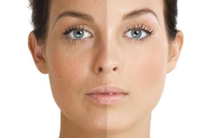 Pigmentation For women