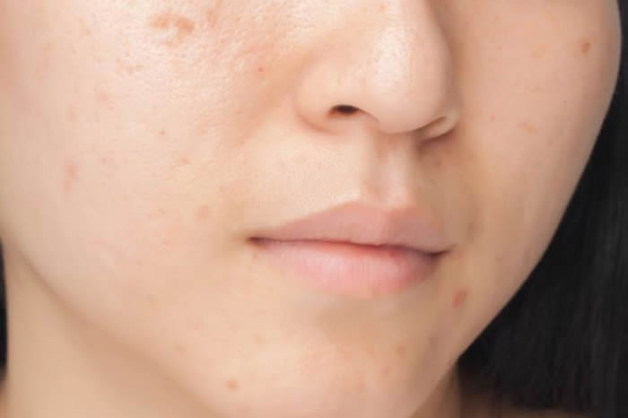 Scars remover for women