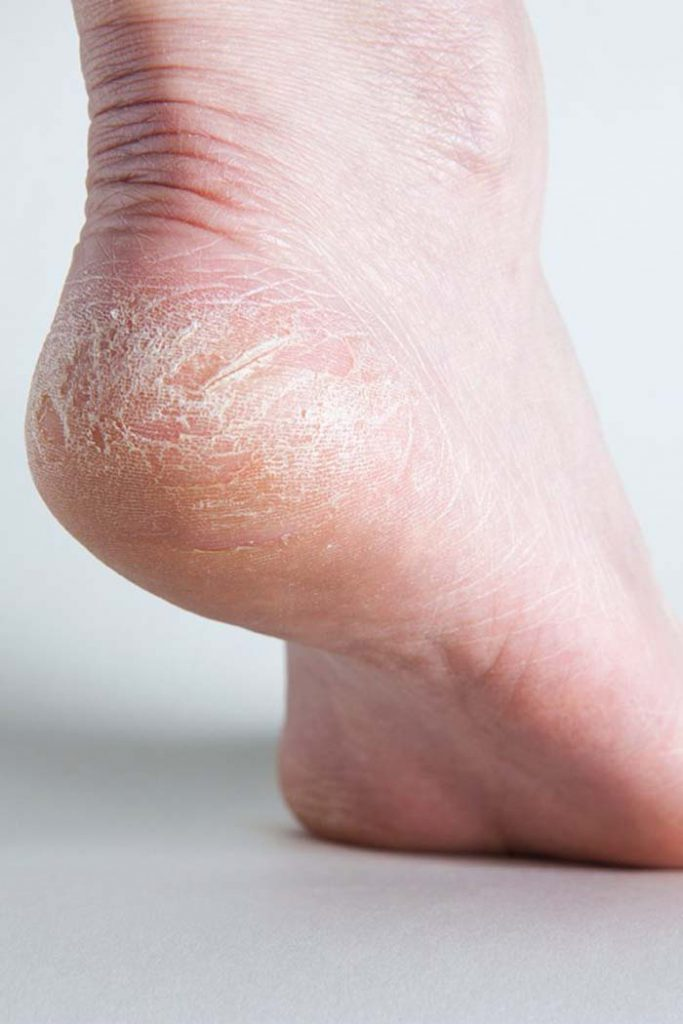 nine powerful domestic remedies To quick do away with Cracked Heels