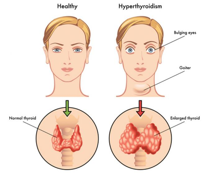 Thyroid Symptoms, Causes And Effective Home Remedies