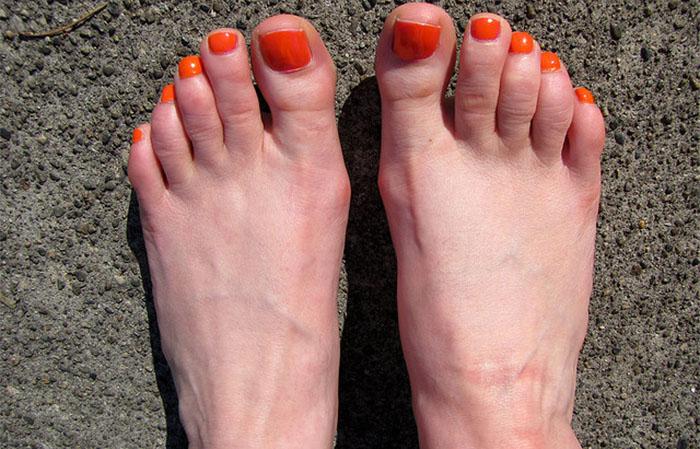 toenails short